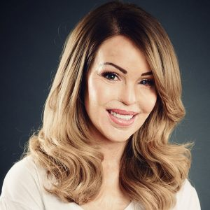 Katie Piper photo